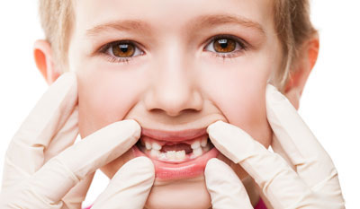 خراب شدن دندان شیری,ریختن دندان شیری