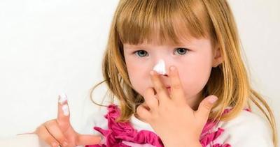 لکه های قهوه ای روی پوست کودک