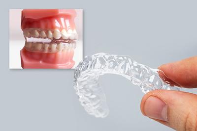 دندان قروچه در کودکان,دندان قروچه کودکان