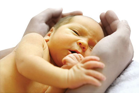 پیشگیری از زردی نوزاد