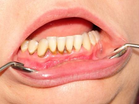 آفت دهان کودکان همراه با تب, علائم آفت دهان کودک, آفت دهان کودک