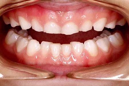 دندان قروچه در کودکان,علت دندان قروچه کودکان در خواب