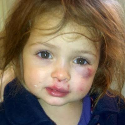 کودک آزاری,کودک آزاری چیست,عکس کودک آزاری چیست