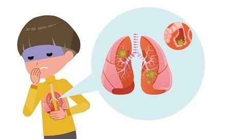 بیماری سینه پهلو, درمان طبیعی سینه پهلو, نشانه های سینه پهلو در نوزاد