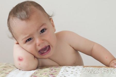 درمان سریع عرق سوزی کودکان, عرق سوزی کودکان, عرق سوز