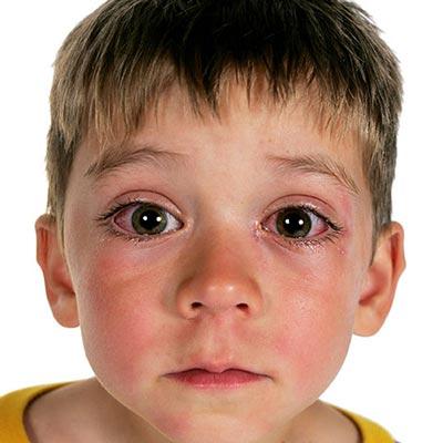 عفونت چشم در کودکان,علت عفونت چشم در کودکان,علل عفونت چشم در کودکان