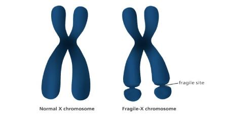 سندرم ایکس شکننده چیست,بیماری سندرم ایکس شکننده,نشانه های سندرم ایکس شکننده