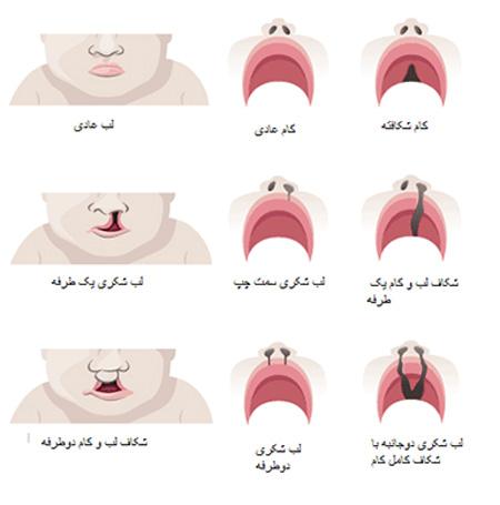 راه های درمان لب شکری در کودکان