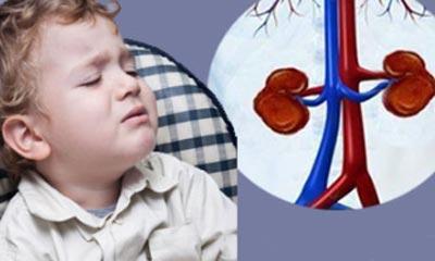نارسایی کلیه در کودکان,بیماری کلیه در کودکان,بیماری های کلیه در کودکان