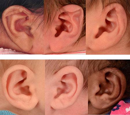 بدفرمی گوش نوزادان,بدشکلی گوش نوزادان,دلیل بد شکلی گوش نوزادان