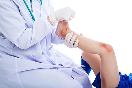 درد مفاصل کودکان,علت درد مفاصل کودکان,درمان درد مفاصل کودکان