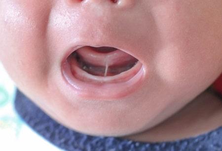 درمان چسبیدن زبان به کف دهان, علایم چسبیدن زبان به کف دهان, چسبندگی زبان در کودکان