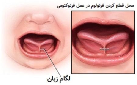 علل چسبندگی زبان نوزاد, بیماری چسبیدن زبان به کف دهان, علت چسبیدن زبان به کف دهان در نوزادان