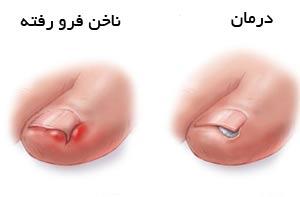 فرو رفتن ناخن پا  در گوشت