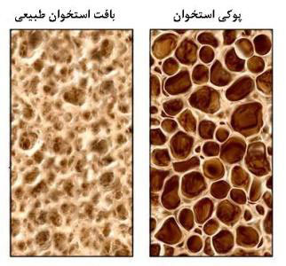 [تصویر:  hhe2658-world-osteoporosis-day.jpg]