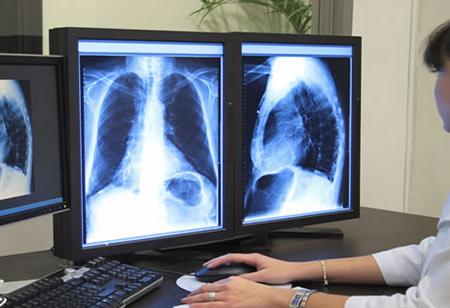 رادیولوژی،تاریخچه کشف پرتو ایکس،17 آبان روز جهانی پرتونگاری