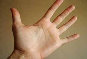 سفید شدن کف دست