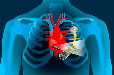 عمل جراحی گذاشتن باتری قلب, تعداد ضربان قلب