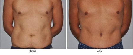 ابدومینوپلاستی,عمل جراحی زیبایی شکم,خطرات ابدومینوپلاستی