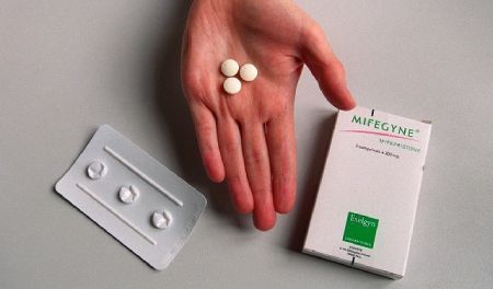عکس سقط جنین, علل سقط جنین