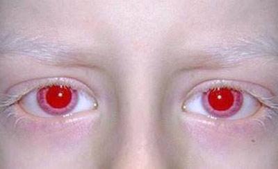 علل بیماری آلبینیسم, بیماری زالی