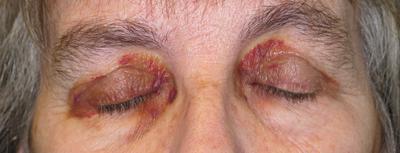 بیماری ها و راه درمان|راجع به بیماری آمیلوئیدوز چه میدانید؟؟؟
