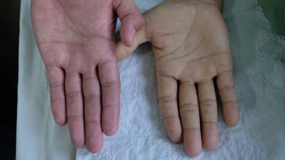 بیماری کم خونی, درمان کم خونی شدید