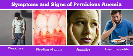 کمخونی پرنیشیوز, کم خونی فقر ویتامین ب 12