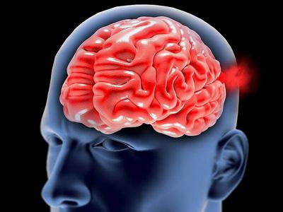 درمان آنوریسم مغزی, آنوریسم