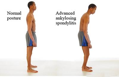 [تصویر:  ankylosing-spondylitis1-e11.jpg]