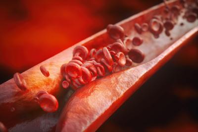 آترواسکلروز شریان کرونر, درمان آترواسکلروز