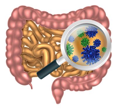 با ۷ گام سالم، تعادل میکروبیوم های روده را افزایش دهید