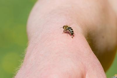 درمان زنبورزدگی, خطرات زنبورزدگی