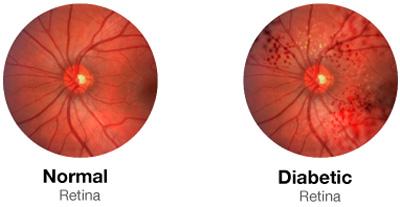 دیابت نابینایی, دیابت و نابینایی