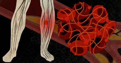 نشانه های لختگی خون, لخته خون در پا