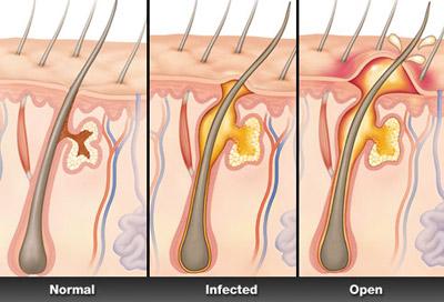 درمان کورک جوش, علت ایجاد کورک