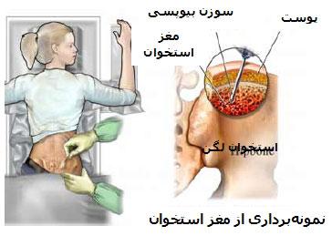درد سرطان استخوان, علایم سرطان استخوان در خون
