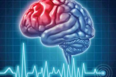 علت مرگ مغزی, علائم مرگ مغزی چیست