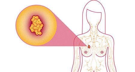 علت سرطان سینه ,علت سرطان سينه در زنان