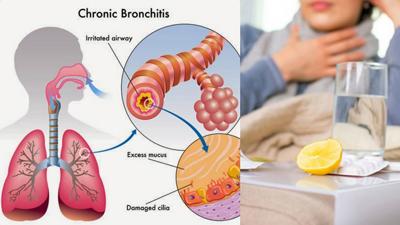 درمان برونشیت مزمن, علایم و درمان برونشیت