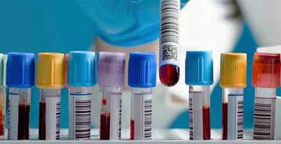 درمان بروسلوز, انتقال بروسلوز با اسپرم