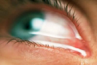 گل مژه, التهاب سطح چشم
