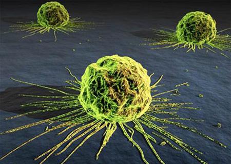 علایم سرطان,نشانه های سرطان,سرطان
