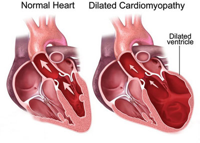 cardiomegaly5 e9 - علل و علائم کاردیومگالی یا بزرگ شدگی قلب