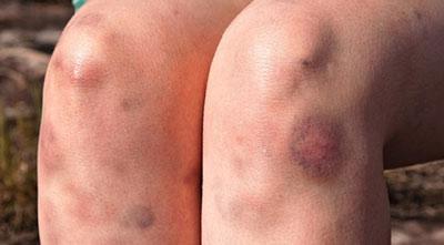 کبودی پوست در زنان, علل کبودی پوست