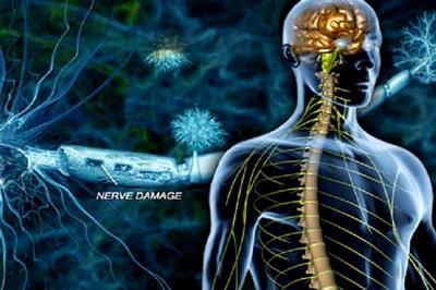 آسيب عصبي محيطي, آسيب عصب راديال