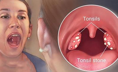 درمان سنگ لوزه, درمان سنگ لوزه شدید