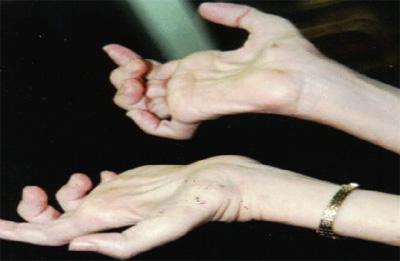 بیماری شارکو ماری توث, علت بیماری شارکو ماری توث