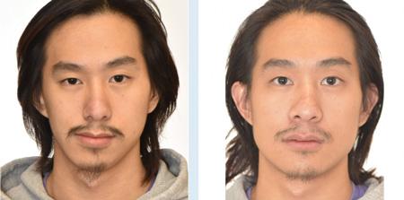 جراحی پروتز چانه, پروتز چانه قبل و بعد