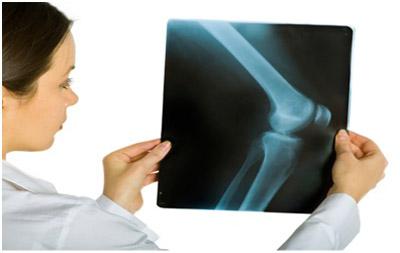 درمان نرمي کشکک زانو, درد مزمن زانو
